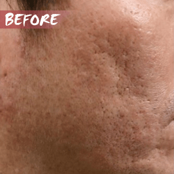 Large Pores before