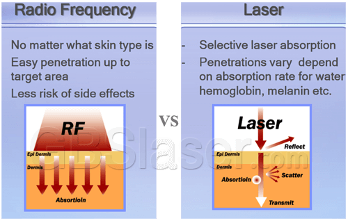 Needle rf fractional, Difference between Fractional micro needle RF and laser