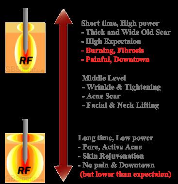 scarlet microneedle rf, Fractional rf micro needle