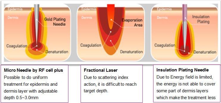 Microneedle rf, microneedling acne scars