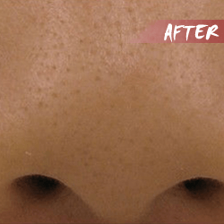 fractional microneedle rf enlarged pore after