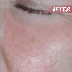 fractional microneedle rf rskin lift after