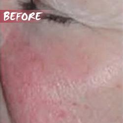 fractional microneedle rf skin lift before
