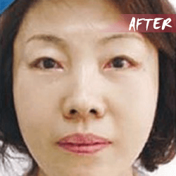 fractional microneedle rf skin lifting after