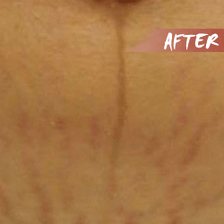 fractional microneedle rf stretch marks after