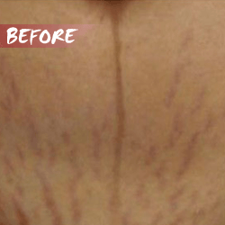 fractional microneedle rf stretch marks before