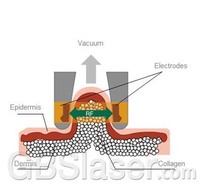 Bipolar RF Plus Vacuum