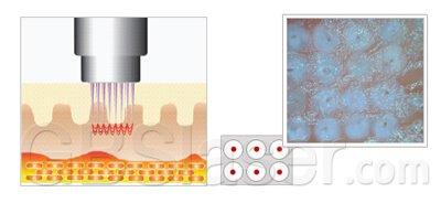 Fractional microneedle RF