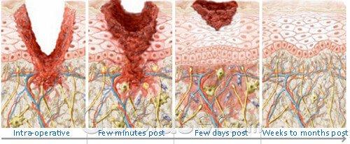 Medical skin needling, at home micro needling