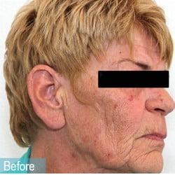 ultrasonic cavitation liposuction