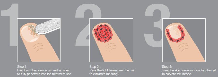 toenail laser
