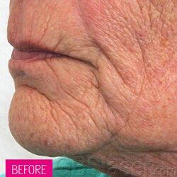 Jet Peel wrinkles