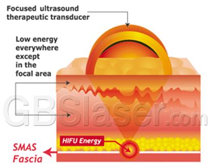 ultrasound facelift, ulthera hifu