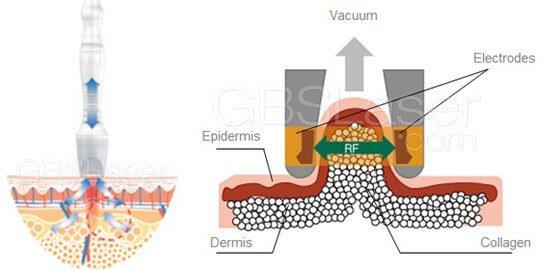 vacuum Bipolar rf