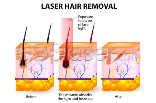 808nm diode laser hair removal machine at home