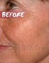 LED light skin rejuvenation before