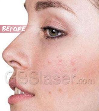 home use rf skin rejuvenationTreatment Before