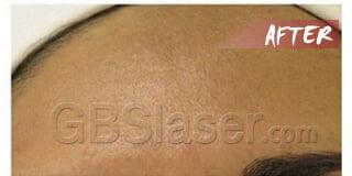 aqua dermabrasion pigmentation treatment after