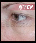 eye wrinkles after