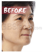 face lifting before