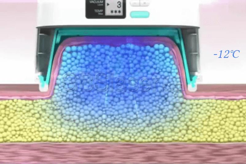 home use cryolipolysis machine working