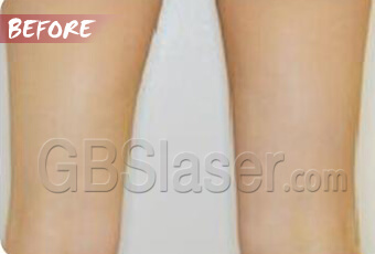 liposuction thighs treatment before