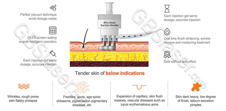 Features of 9 pin ez injector needles