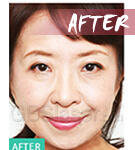 mesotherapy Injector after