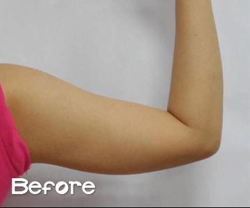 nonsurgical liposuction