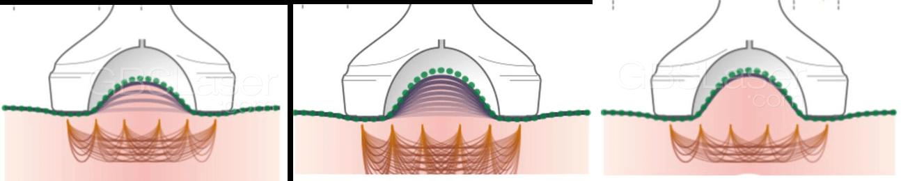 ultrasound cavitation machine